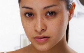 6 حلول طبيعية للتخلص من تصبغات البشرة