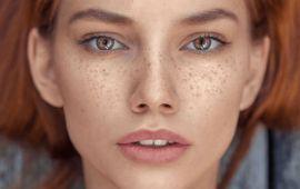 4 طرق طبيعية لإزالة النمش نهائيا من الوجه