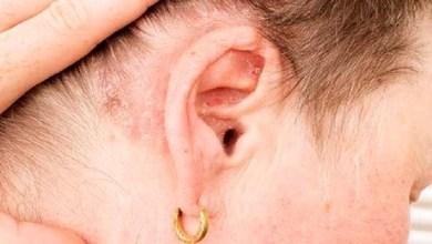 صورة صدفية فروة الرأس.. أعراضها وأسبابها
