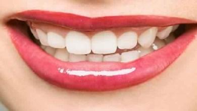 صورة كيف تحمي أسنانك من البقع الصفراء؟