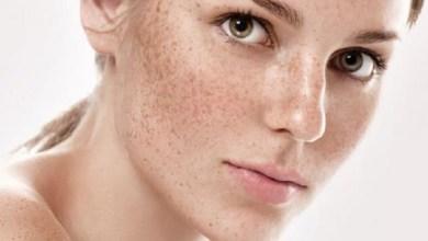 صورة أفضل الحلول للتخلص من النمش ببشرة الوجه