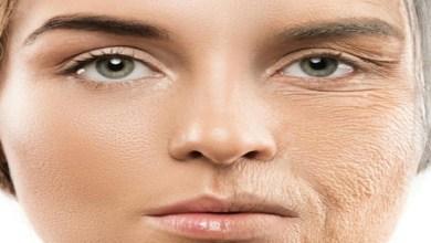صورة 5 أسباب لظهور التجاعيد المبكرة في الوجه