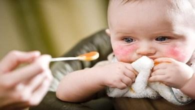 صورة كيف تعرفين أن طفلك مصاب بحساسية الطعام؟