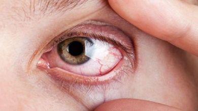 صورة 3 أعراض تصيب العين دليل على الإصابة بمرض خطير!