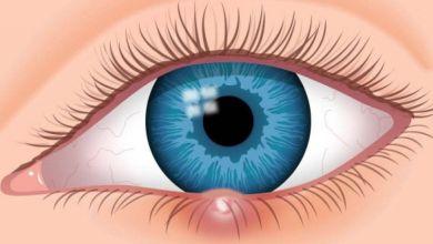 صورة كيف نُصاب بشحاذ العين؟ وما هي أسبابه وطرق معالجته؟