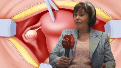 """صورة طبيبة تكشف مميزات تضييق المهبل بالليزر وتحذر من استخدام """"الخزامة""""-فيديو-"""