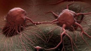 صورة دراسة.. عنصر غذائي يقلل خطر الوفاة بالسرطان