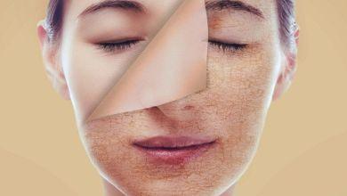 صورة ماسكات طبيعية لعلاج جفاف البشرة الحساسة