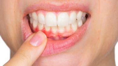 صورة ما هي أعراض التهاب اللثة واضطرابات الأسنان؟