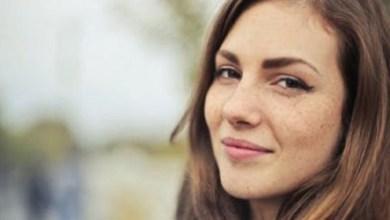 صورة كيف تقي بشرة وجهك من النمش؟