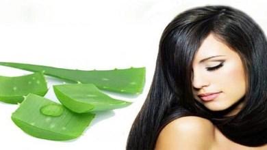 صورة وصفة جل الصبار لعلاج قشرة الشعر