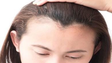 صورة وصفات طبيعية لتكثيف الشعر
