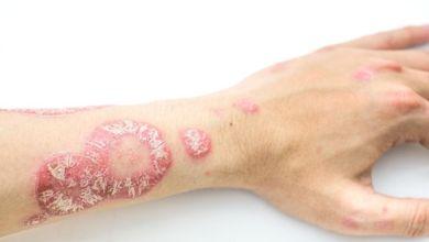 صورة الصدفية لا تؤثر بالجلد فقط.. تعرفي على آثارها بالرئتين