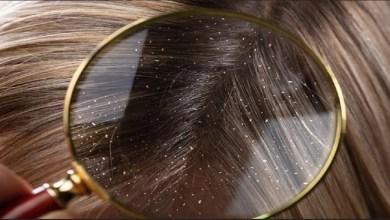 صورة مكونات طبيعية لعلاج مشكل قشرة الشعر