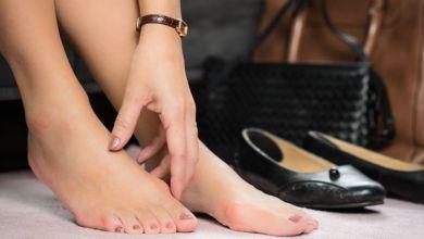 صورة إليك علاج تورم أصابع القدم بسبب الحذاء