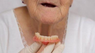 """صورة """"خطر صحي"""" يهدد كبار السن عند فقدان الأسنان"""
