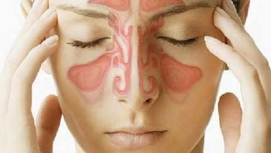 صورة التهاب الجيوب الأنفية.. الأعراض والأسباب وطرق الوقاية