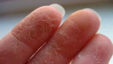 صورة خطوات بسيطة للوقاية من جفاف اليدين