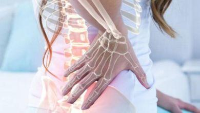 صورة ملف شامل عن أسباب وأعراض وعلاج هشاشة العظام