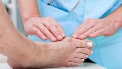 صورة مرض النقرس.. أسبابه وأعراضه وطرق الوقاية منه