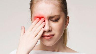 صورة 4 أعراض تصيب العين وتدلّ على الإصابة بفيروس كورونا!