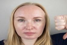صورة ما هي أسباب فرط الإفرازات الدهينة في فروة الرأس؟