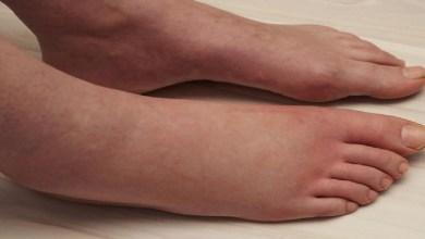صورة انتفاخ القدمين ينذر بالإصابة بمرض خطير