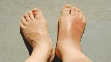 صورة التهاب القدم السكري.. الأسباب والأعراض
