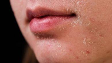 صورة حالات مرضية يمكن أن تسبّب تقشّر الجلد