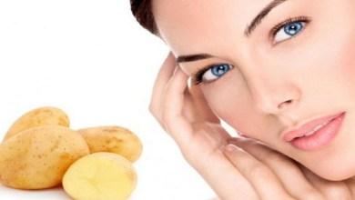 صورة وصفة البطاطس للتخلص من بثور الوجه