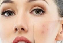 صورة ماسكات طبيعية للتخلص من بثور الوجه