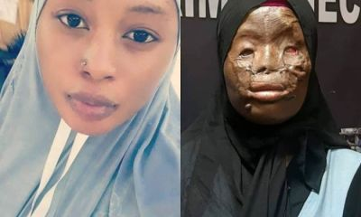 Beautiful Ghanaian Lady Who Survived Acid Attack In Saudi Arabia Undergoes Plastic Surgery