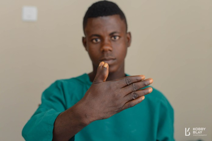 suicide surgery extra fused finger Greater works foundation,Obuasi