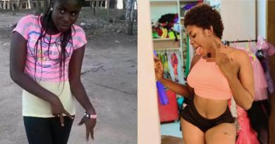 Yaa Jackson exposed for over bleaching – [photos].