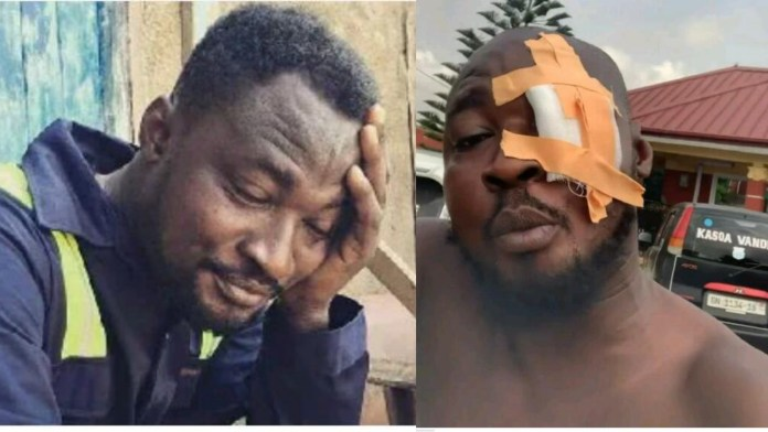 GNP: Funny Face Is Now Suffering From Depression - His Lover Says