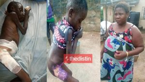 Heartless Woman Pours Hot Water On 8 Year Old House Help For Licking Milk Photos 768x432