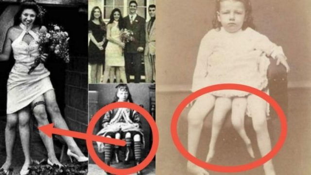 myrtle-corbin:-cause-of-birth,-siblings,-anatomy-&-facts-about-the-two-private-parts,-four-legs-woman