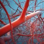 Тромбоэмболия. Что влияет и от чего остерегаться.