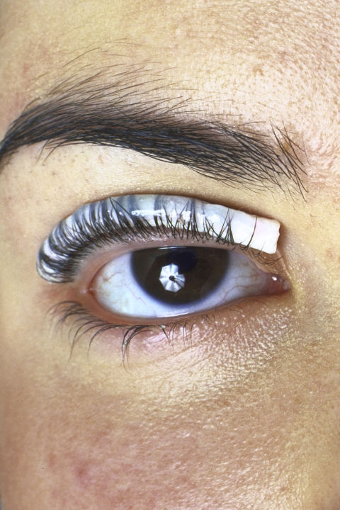 Illegal Beauty Treatmets