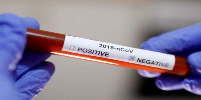 COVID-19 positive cases rise to 30 in Volta Region
