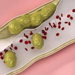 """Những """"liều thuốc"""" đặc trị thông tắc động mạch, làm sạch mỡ máu hiệu quả"""