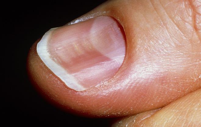 Móng tay xuất hiện dấu hiệu này, bạn có thể bị bệnh tiểu đường hoặc bệnh về máu