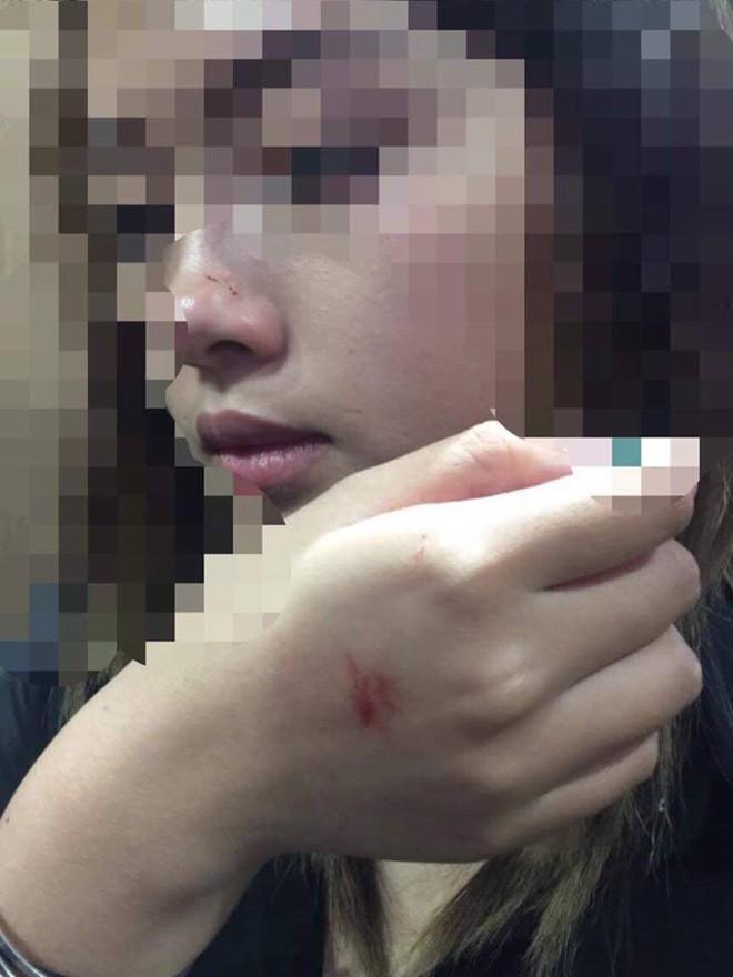 Cô gái bị ép hôn trong thang máy: