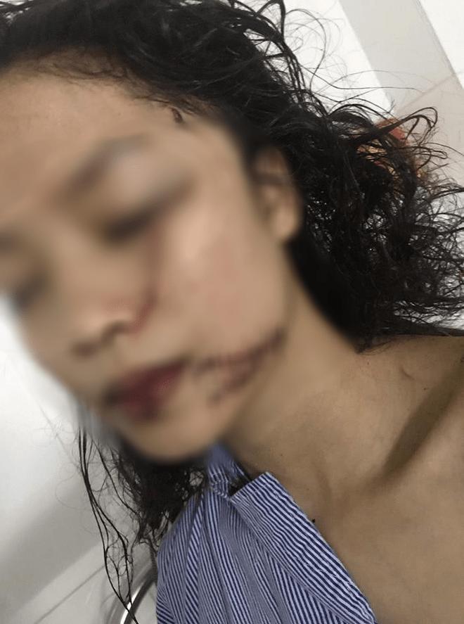 Chị ruột cô gái bị tấn công phải khâu 60 mũi: