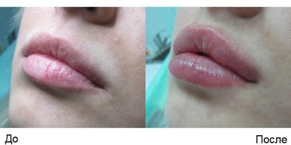 Мезонити в губы: отзывы, техника введения, процедура, фото ...