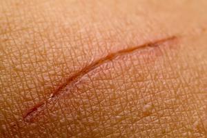 Как остановить кровь после бритья