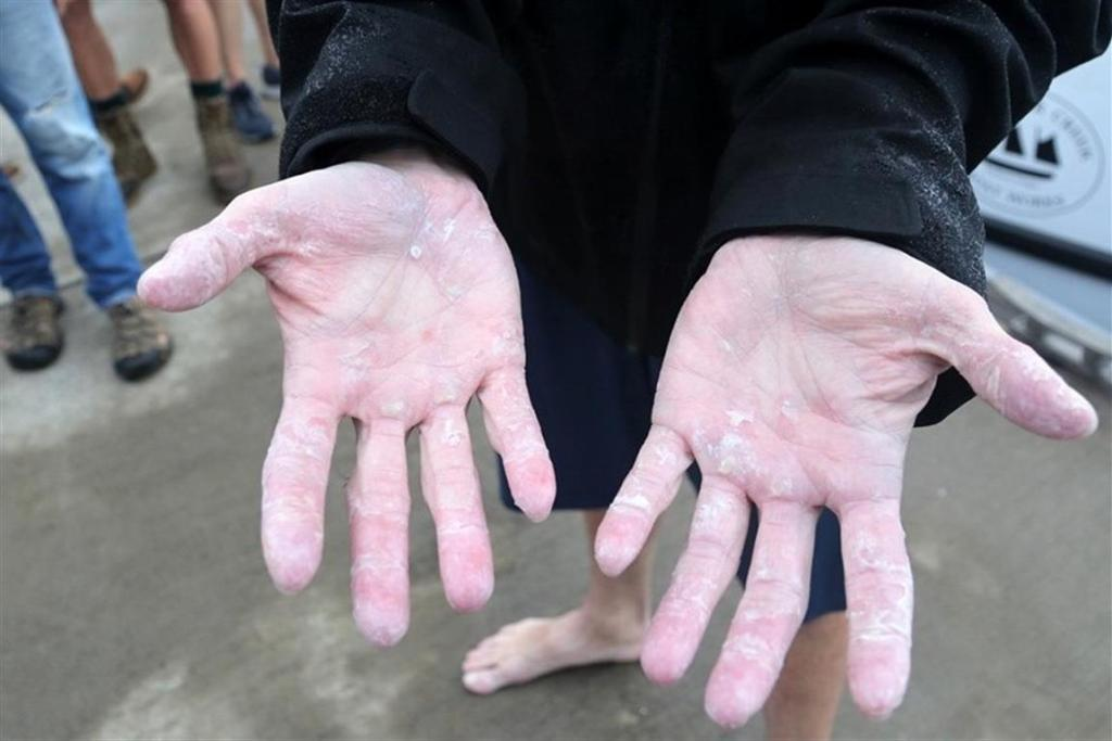 Jacob's blistered hands