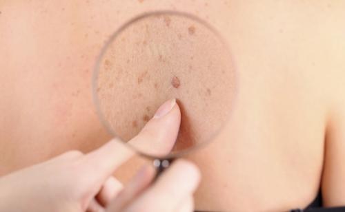 Dra. Gina Matzenbacher - Dermatologia - Câncer da pele
