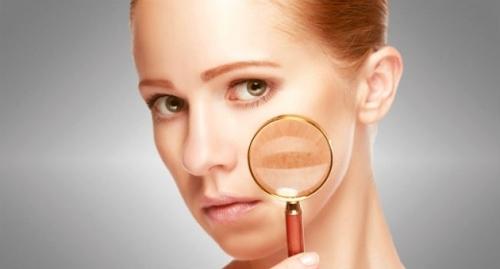 Dra. Gina Matzenbacher - Dermatologia - Melasma