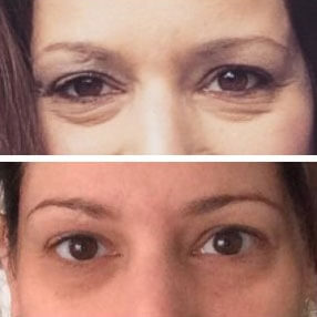 The Truth About Rodan + Fields  from a Customer! 1